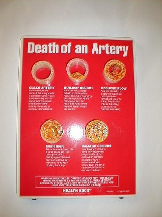 Large image for Death of an Artery